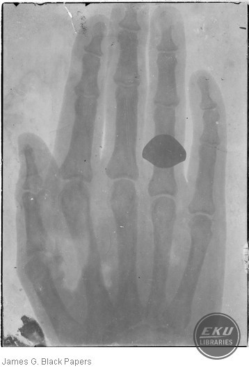 X-Ray of H.M. Patterson's hand at the University of Kentucky by J.G. Black